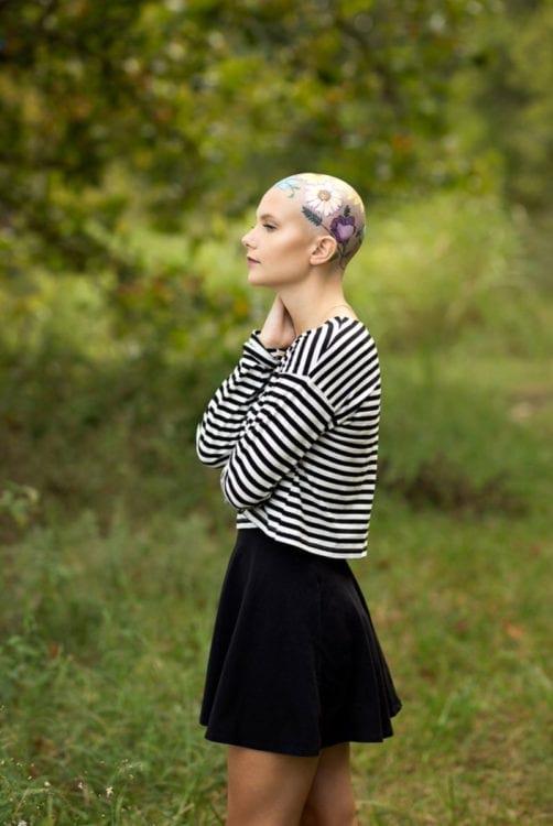 Перед выпускным эта девушка с алопецией попросила свою мать помочь ей, и она придумала нестандартное решение — расписать её голову цветами