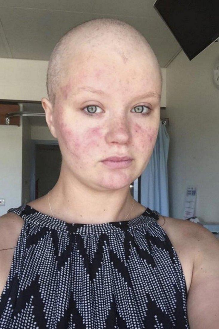 27-летняя девушка «родила» раковую опухоль в больничном туалете, хотя думала, что это беременность